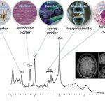 Как МРТ спектроскопия выполняет виртуальную биопсию