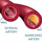 Новый тест поможет избежать ненужной катетеризации сердца
