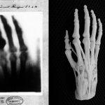 3D печать в медицине станет такой же рутиной, как рентген?
