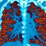 Как низкодозная КТ предотвращает рак легких? Практический опыт