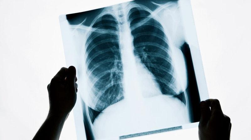 Страх лечится рентгеном?