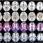 ПЭТ и МРТ выявляют предрасположенность женщин к Альцгеймеру