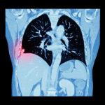 Нейронная сеть распознает будущий рак легких точнее, чем клинический стандарт