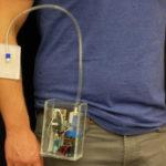 Портативное устройство для заживления ран