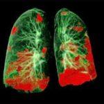 КТ находит остаточные повреждения легких после COVID-19