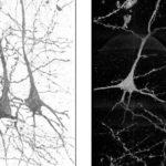 Инновационная визуализация – новый взгляд на причины шизофрении