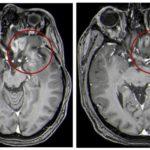 Необычный многообещающий метод лечения опухолей головного мозга у детей