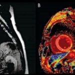 МРТ как скрининг сердечно-сосудистых заболеваний